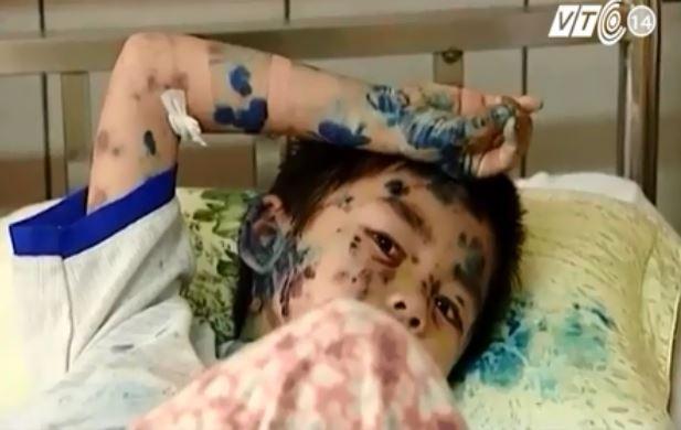 [VIDEO] Rợn người xem dị ứng mỹ phẩm tàn phá cơ thể
