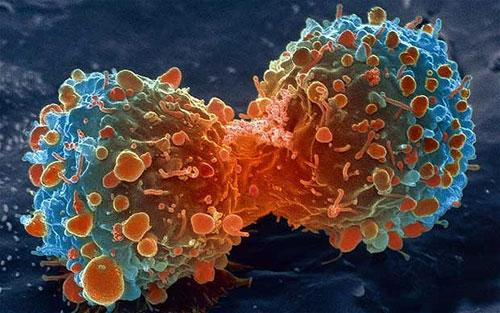 [VIDEO] Cận cảnh tế bào bạch cầu 'săn diệt' tế bào ung thư