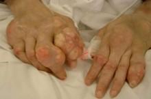 Kỳ diệu, bài thuốc nam chữa dứt điểm bệnh Gout trong 15 ngày