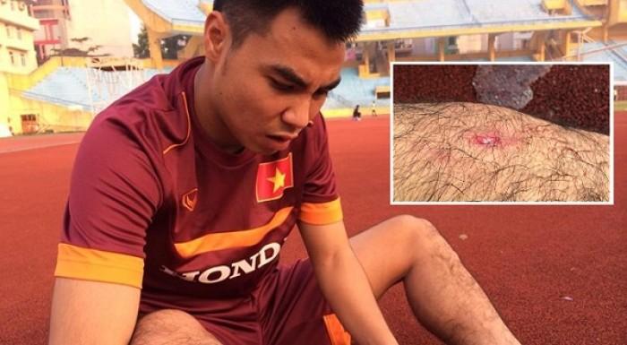 U23 Việt Nam gặp bão chấn thương, HLV Miura bổ sung nhân sự