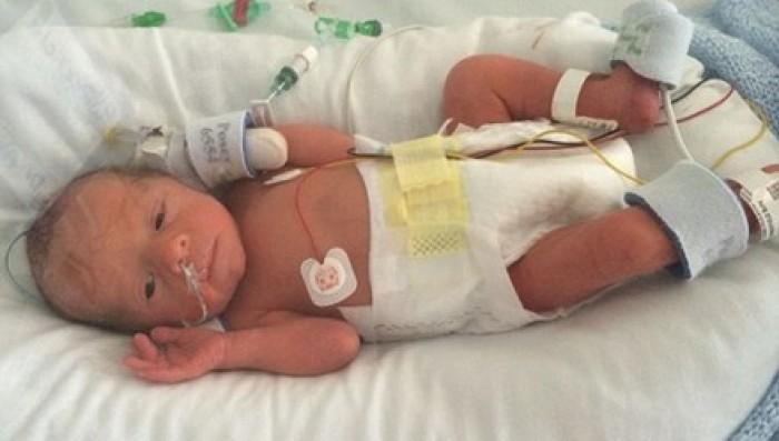 Bác sĩ mổ đẻ tá tỏa không thấy em bé trong bụng sản phụ