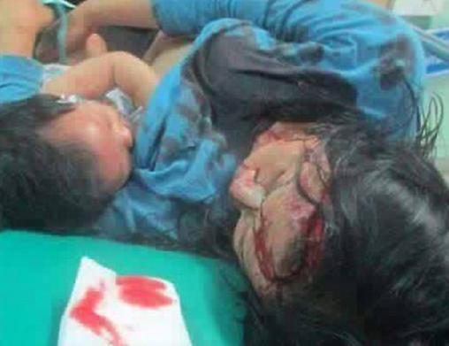 [Cảm động] Người mẹ bị thương nặng vẫn cho con bú