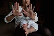 Bé trai có 31 ngón tay, chân được phẫu thuật chỉnh hình