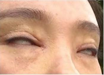 Cô gái không thể nhắm mắt sau phẫu thuật cắt mí