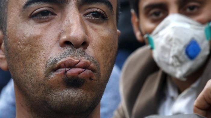SỐC: Người nhập cư tự khâu miệng để phản đối