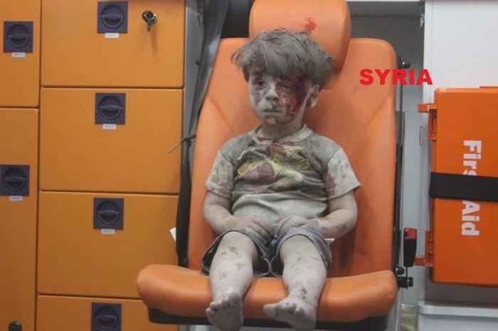bi mat dang sau tam anh cau be syria bi thuong