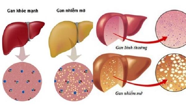 Nguy cơ mắc các bệnh lý về gan bởi chế độ ăn nhiều thịt