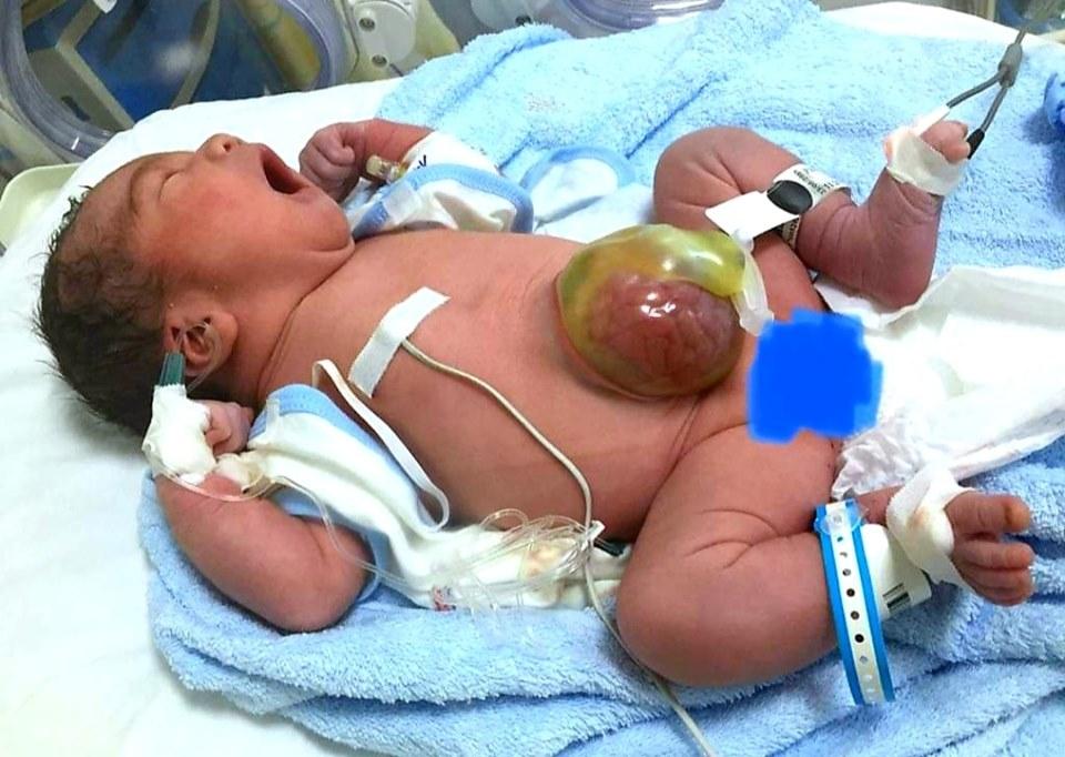 Sự phục hồi ngoạn mục của bé sơ sinh bị thoát vị rốn khổng lồ