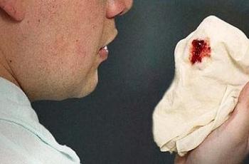 Ho ra máu - Biểu hiện của bệnh gì?