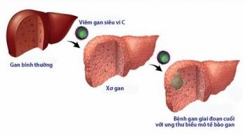 Lưu ý sức khỏe với người mắc bệnh gan mạn tính trong dịch Covid-19