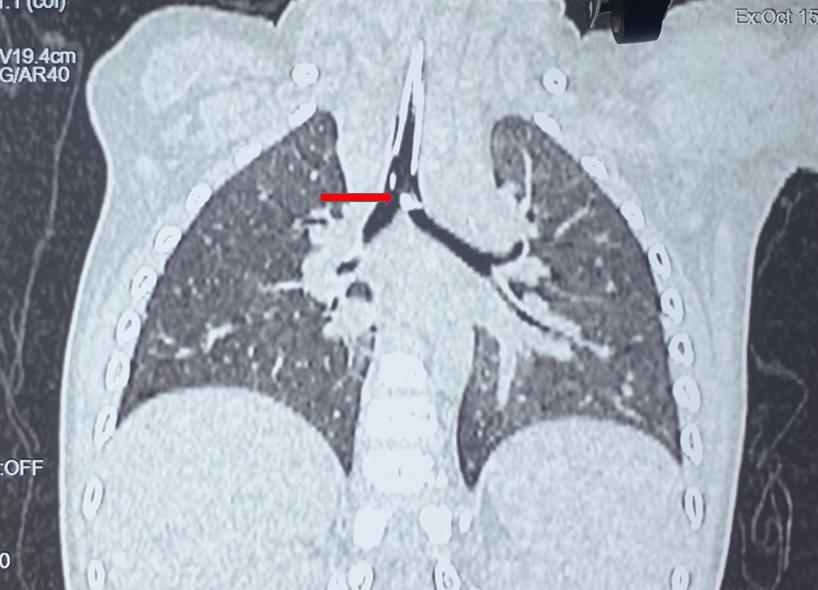 Cứu sống trẻ 20 tháng tuổi bị hóc xương lợn vào đường thở gây suy hô hấp nặng