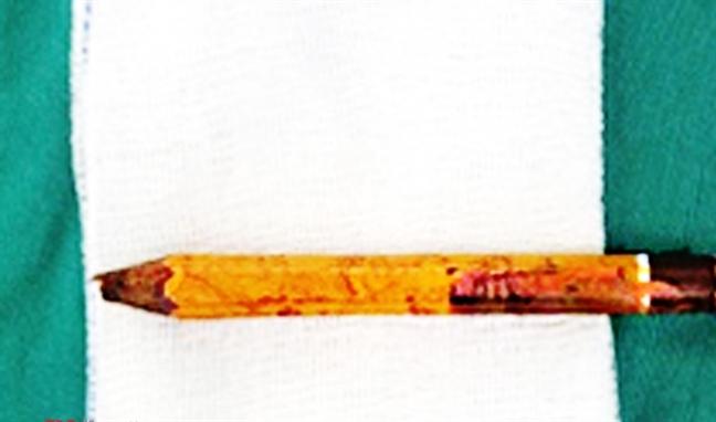 Nô đùa tại trường học, bé trai bị bút chì đâm sâu 8cm vào mông