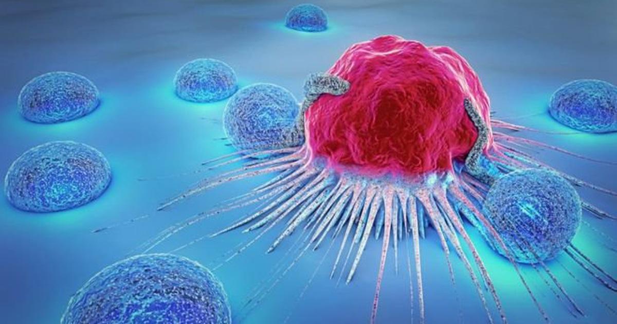 5 bước giúp bạn giảm nguy cơ ung thư