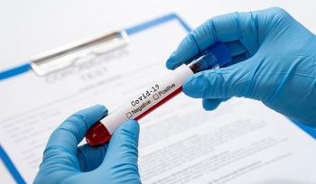 Tiêu chí phân loại nguy cơ người nhiễm SARS-CoV-2