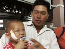 """Bé trai 3 tuổi bị cây đâm xuyên mặt vì ngã """"cầu khỉ"""""""