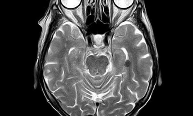 Chế tạo máy chụp cộng hưởng từ não có thể di động với giá thành rẻ - 1
