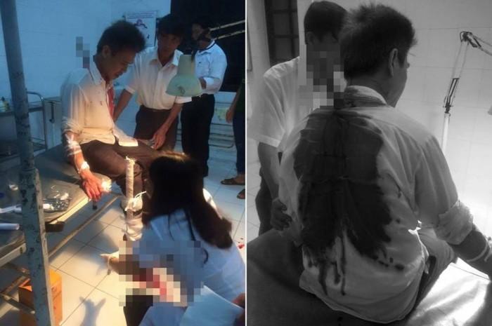 Thanh niên 15 tuổi cướp xe ôm ở Thái Bình