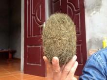 Hà Nội: Phát hiện 'quả trứng lạ' trong bụng lợn
