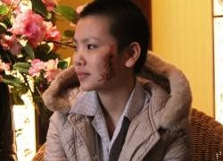 Cô gái bị xăm hình rết trên mặt sẽ về quê ăn Tết