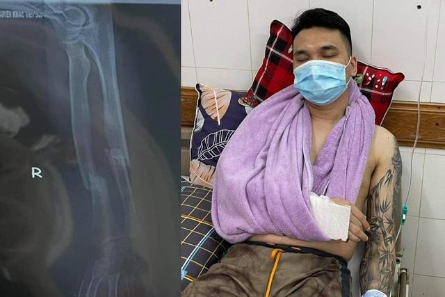 Ca sĩ Khắc Việt bị gãy xương cổ tay, hủy toàn bộ lịch diễn - 1