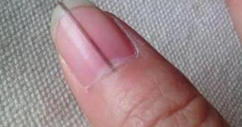 """Những dấu hiệu bất thường trên bàn tay """"chỉ điểm"""" ung thư giai đoạn đầu"""