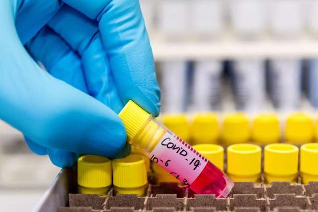 Malaysia phát hiện chủng virus gây bệnh Covid-19 lây nhiễm gấp 10 lần